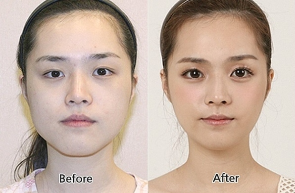 south-korean-beuaty-pageant-plastic-surgery