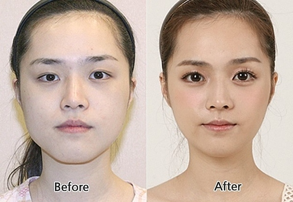 south-korean-beuaty-pageant-plastic-surgery